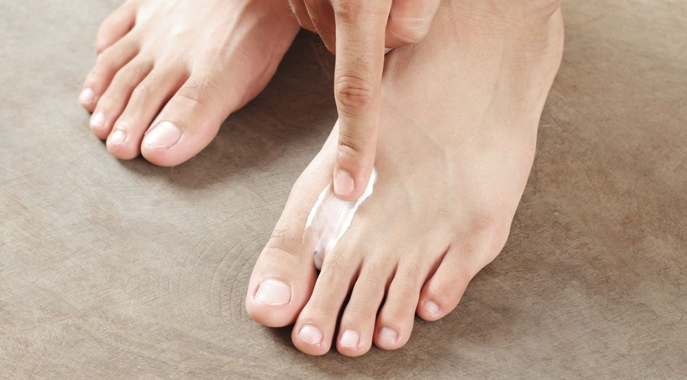 Image of a man using athlete's foot cream on his feet